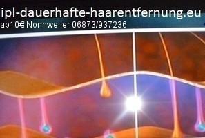IPL+RF Dauerhafte Haarentfernung Nonnweiler Saarland. Haarentfernung St.Wendel Saarland arbeitet das IPLicht+Radiofrequenz flächerartig, IPL+RF SHR Dauerhafte Haarentfernung Freisen.