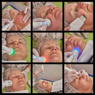 PureFacial Behandlung saarland Aqua Vakuum Peeling, wasser serum gesicht behandlung,Tiefenreinigung, entfernt Öl, Mitesser, Akne, Schmutz, verbessert fettige Haut, erhöht die Elastizität der Haut und verbessert den Hautton, Purefacial Gesichtsbehandlung,