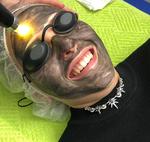 Laser-Peeling mit Carbon-Nanogel: Peeling, Verjüngung und Akne Entfernung in einem Laser Behandlung.