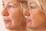 3D HIFU Lifting Smas Hautstraffung, Anti Aging, Schönheit ohne OP Saarland hifu bilder vorher nachher