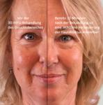3D HIFU Lifting Smas Hautstraffung, Anti Aging, Schönheit ohne Skalpell Saarland hifu bilder vorher nachher
