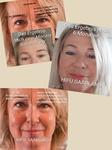 3D HIFU Lifting Smas Hautstraffung, Anti Aging, Schönheit ohne Skalpell Saarland hifu bilder vorher nachher, Gesicht Hautverjüngung saar hautstraffung
